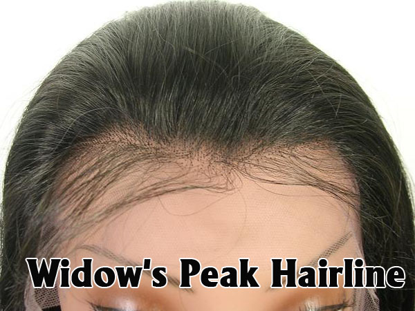 widow peak hairline